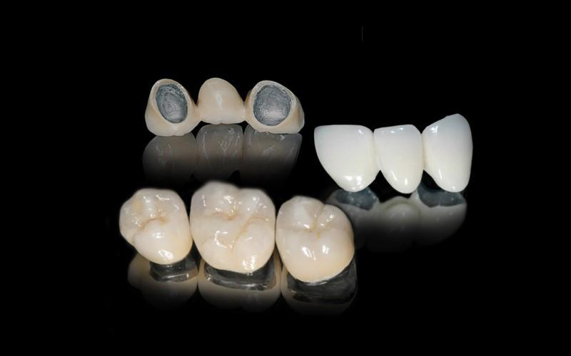 Mão PFM được tạo thành từ hai thành phần. Lõi của chúng được làm từ kim loại. Đây là phần bên trong của mão răng nằm trên và được gắn vào răng tự nhiên. Sứ sau đó được xếp lớp và gắn với đế kim loại. Để tạo cho mão răng hình dạng và màu sắc giống như răng thật.