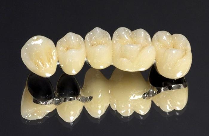 Một số nhược điểm khác của mão PFM là theo thời gian, đặc biệt là khi nướu bị rút, kim loại bên dưới để lộ ra đường viền tối màu. Các loại sứ được sử dụng cũng có độ mài mòn và có thể làm mòn răng đối diện.