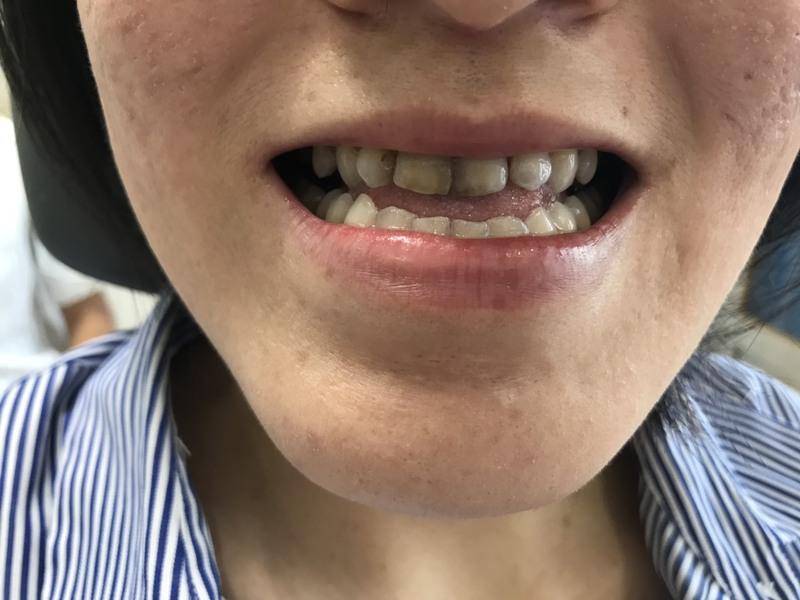 Triệu chứng của bệnh lý sâu răng là gây ra các vết sâu răng màu đen hoặc nâu xám… Hàm răng của người bệnh cũng mất đi tính thẩm mỹ. Hơn nữa, lỗ sâu răng cũng tạo cảm giác không sạch sẽ. Nên khiến bệnh nhân thiếu tự tin khi giao tiếp.