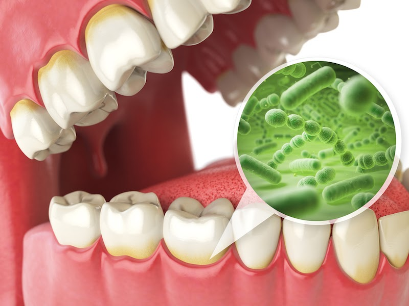 Mảng bám là những lớp màng trên răng được hình thành bởi đường và tinh bột. Chúng được hình thành và bám trên bề mặt sau khi ăn từ 15-20 phút. Nếu không được vệ sinh sạch sẽ, chúng sẽ kết hợp với những enzyme có trong nước bọt và tạo nên những mảng bám trên bề mặt răng. Lâu dài mảng bám sẽ tạo thành vôi răng, chúng bám lên viền nướu và trở thành nơi trú ngụ của vi khuẩn.
