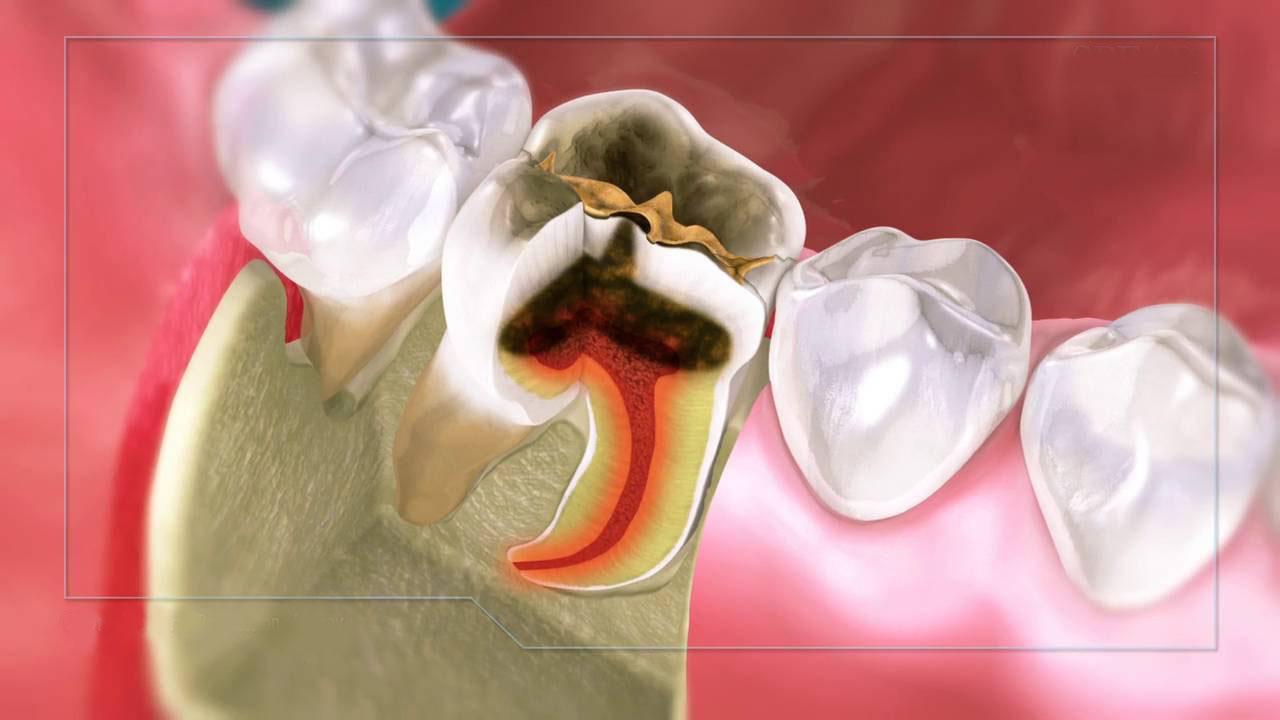 Giai đoạn áp-xe chính là giai đoạn vi khuẩn gây hỏng và viêm buồng chứa tủy
