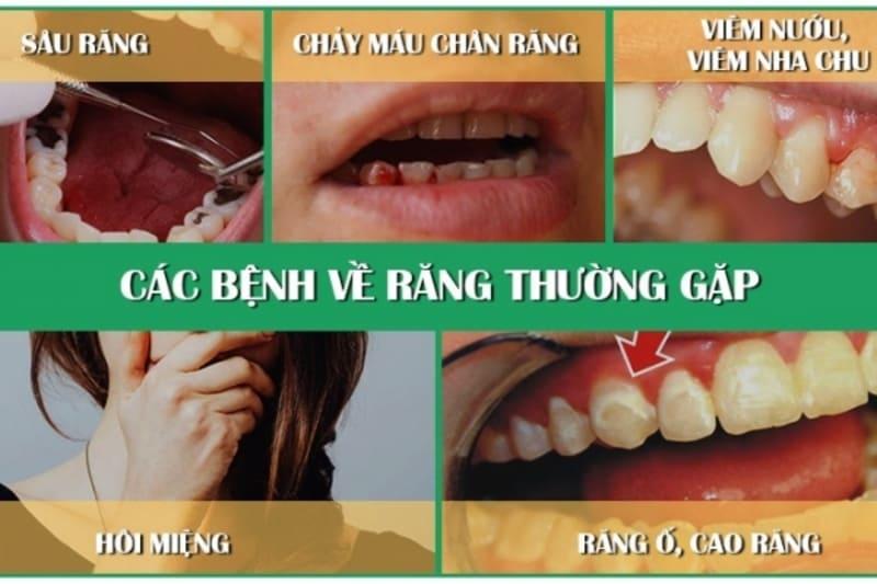 Các bệnh lý phổ biến như sâu răng, viêm nha chu, viêm nướu hoặc tụt nướu,… đều có khả năng dẫn đến thưa răng hàm dưới