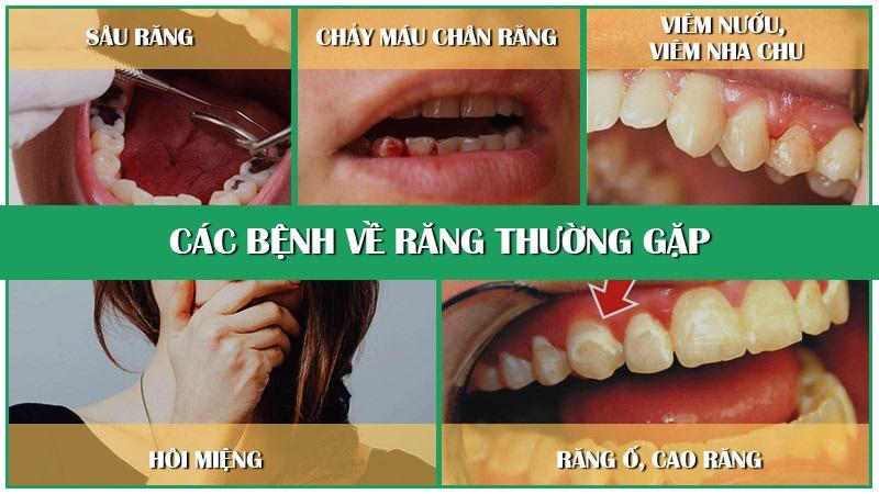 Các bệnh lý về răng miệng đều có thể là nguyên nhân gây ra tình trạng tụt lợi răng