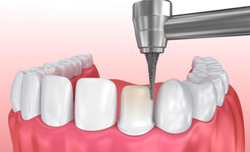 Để mão sứ lắp vào răng thật, các nha sĩ buộc phải mài bớt răng. Do đó, răng thường sẽ yếu đi. Một số trường hợp do răng sứ không khớp với trụ răng. điều này dẫn đến các bệnh nguy hiểm về răng miệng do vi khuẩn tấn công.