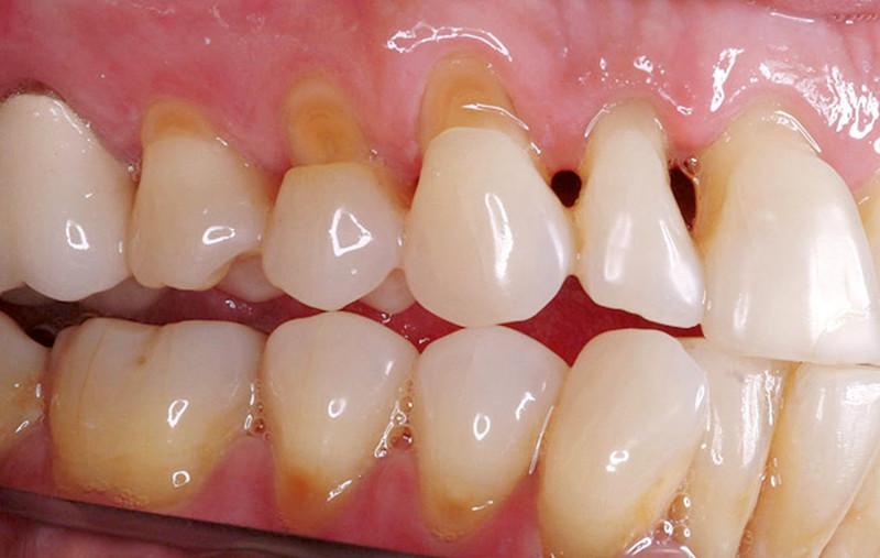 Trám kẽ răng thưa: Đối với người gặp nhược điểm các răng mọc thưa tạo ra những khoảng cách lớn. Trám răng có tác dụng tạo ra miếng ốp bít lại khoảng cách giữa các răng, trả lại hàm răng đều đẹp Trám răng mẻ: Trước vấn đề sứt mẻ răng, hàn là một trong những phương pháp có thể sử dụng để phục hình thẩm mỹ cho răng.