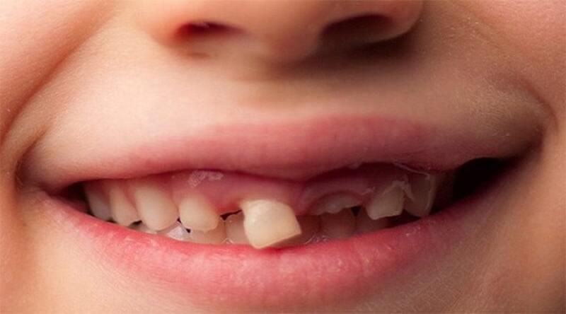 Răng sữa mọc lệch sai vị trí mọc. Đối với nguyên nhân này, trẻ em khi thay răng có thể sẽ không còn hiện tượng mọc thưa.