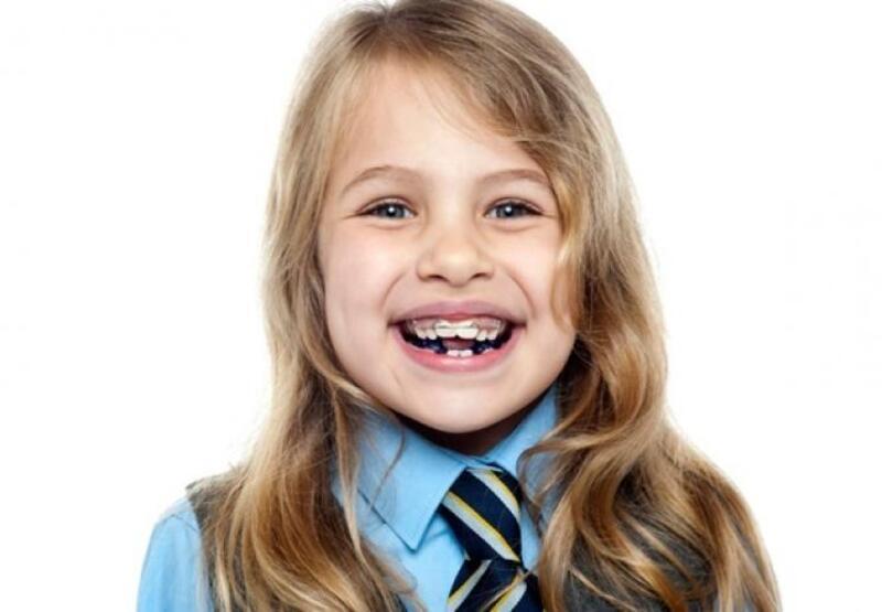 Răng thưa hàm dưới do bẩm sinh ở trẻ em Do răng trẻ từ bẩm sinh đã mọc thiếu, không đủ số lượng.