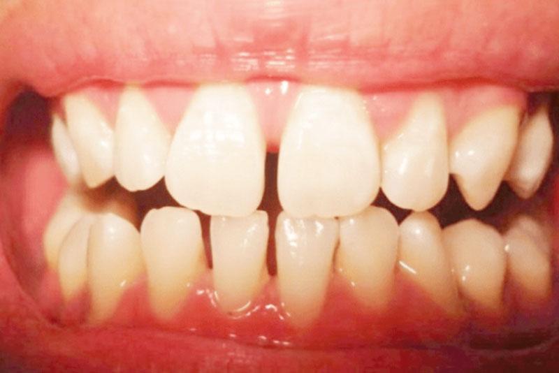 Răng thưa hàm dưới | Nên làm gì với răng thưa hàm dưới?