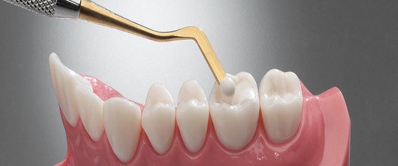 Trải nghiệm trám răng của những người đã từng thực hiện: việc trám răng hoàn toàn dễ chịu, nhanh chóng và mang tính thẩm mỹ cao