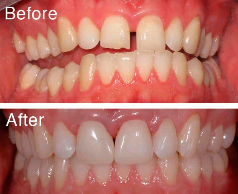 Trám răng là phương pháp dùng vật liệu trám nhân tạo để ốp vào thân răng, giúp răng to hơn và đóng kín khe hở giữa các răng.