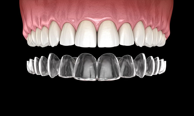 công nghệ niềng răng invisalign