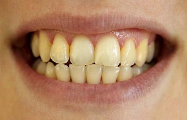 Răng bị đốm trắng đục