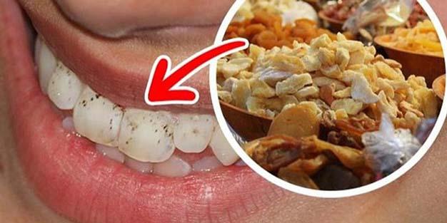 Thực phẩm làm hỏng men răng