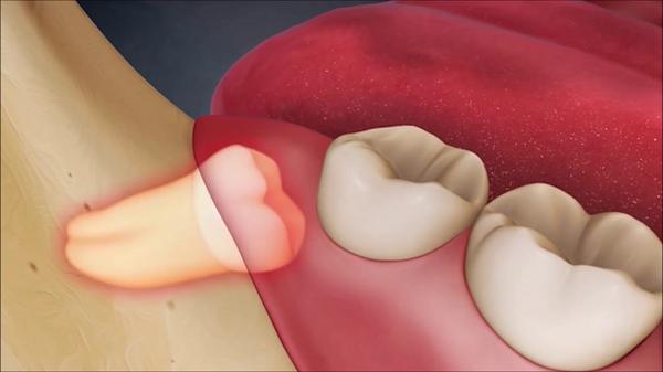 khi nào nên nhổ răng