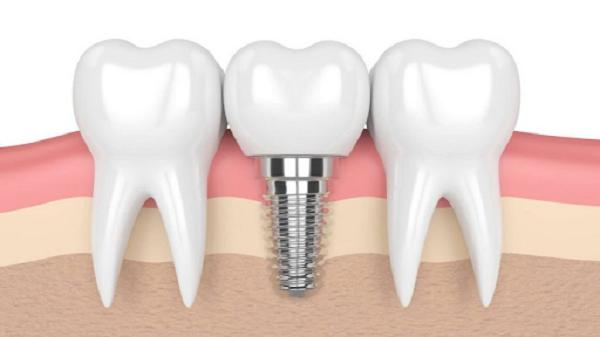 Implant Surgic XT Plus sở hữu nhiều ưu điểm nổi bật