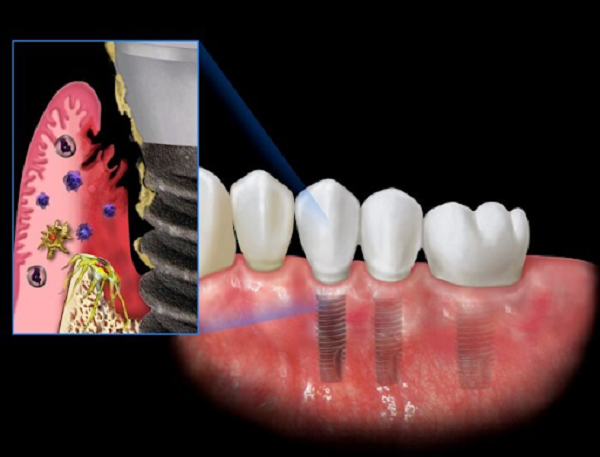 nguyên nhân viêm quanh Implant