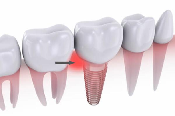 Viêm quanh Implant là gì