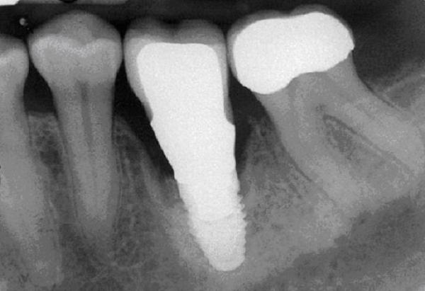 chẩn doán viêm quanh Implant