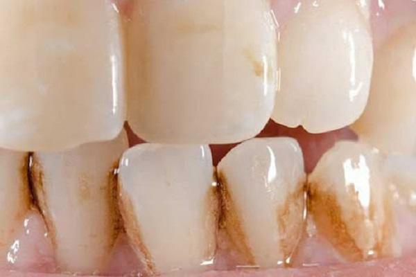 Những trường hợp về răng có thể ứng dụng CAD/CAM