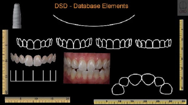 Mô phỏng hình ảnh cung răng trên DSD