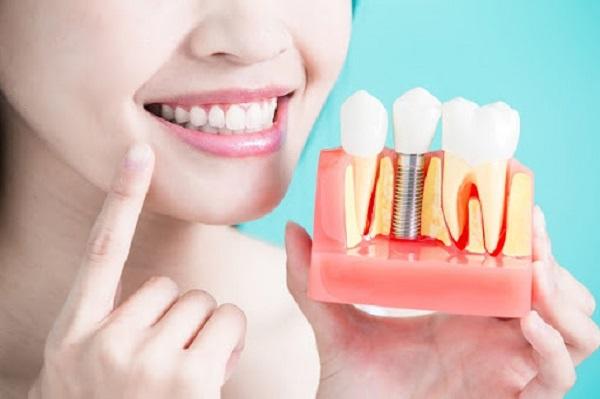Implant Surgic XT Plus giúp hồi phục răng mới với công năng như răng thật