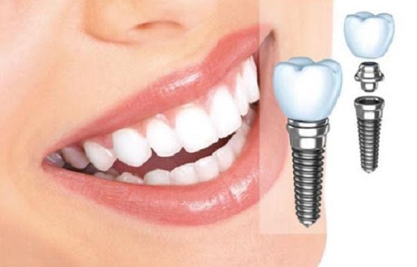 Implant Surgic XT Plus là công nghệ trồng răng đã mất, thiếu răng,...