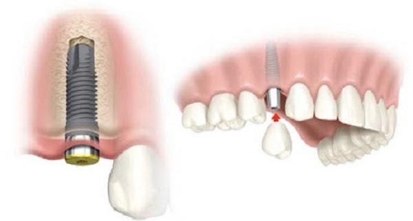 Máy cắm ghép Implant Surgic XT Plus hoàn toàn an toàn