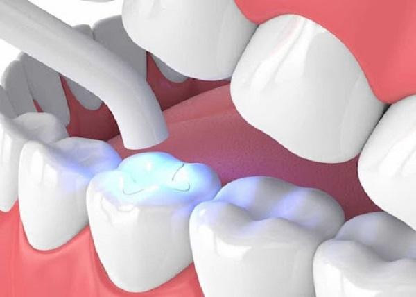 Công nghệ in 3D là giải pháp tối ưu được sử dụng để sản xuất các sản phẩm của nha khoa