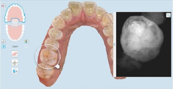 Công nghệ Niri giúp quét hình ảnh răng nhanh chóng